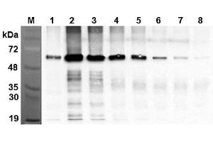 Image no. 1 for anti-Fat Mass and Obesity-Associated (FTO) antibody (ABIN1169073)