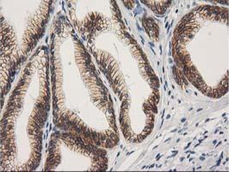 image for anti-Catenin (Cadherin-Associated Protein), beta 1, 88kDa (CTNNB1) antibody (ABIN1496888)