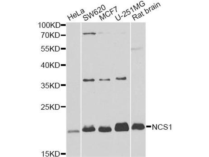 Image no. 2 for anti-Neuronal Calcium Sensor 1 (NCS1) antibody (ABIN6568065)