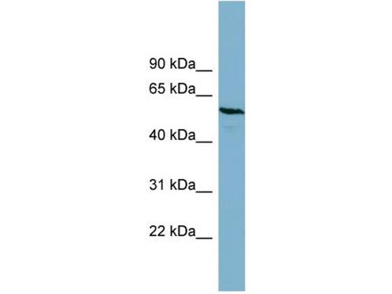 Western Blotting (WB) image for anti-Phosphoglucomutase 3 antibody (PGM3) (Middle Region) (ABIN504073)