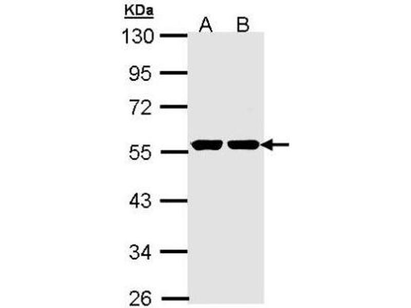 Western Blotting (WB) image for anti-Glucokinase antibody (GCK) (Center) (ABIN443086)