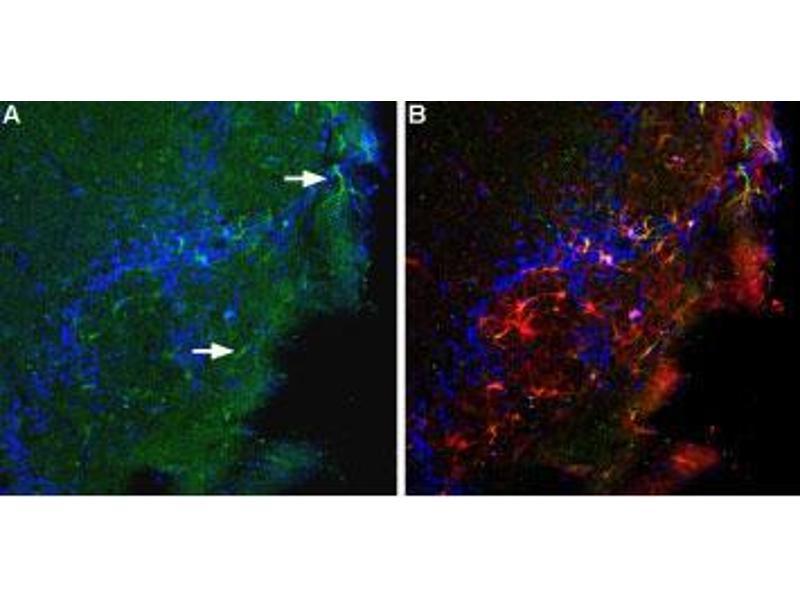 Immunohistochemistry (IHC) image for anti-BAI1 antibody (Brain-Specific Angiogenesis Inhibitor 1) (N-Term) (ABIN1742111)