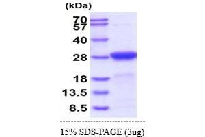Image no. 1 for Adenylate Kinase 1 (AK1) (AA 1-210) (Active) protein (His tag) (ABIN5855038)