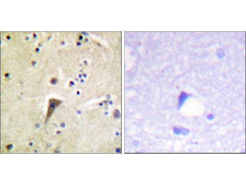 Image no. 1 for anti-PTK2 Protein tyrosine Kinase 2 (PTK2) (pTyr397) antibody (ABIN1576433)