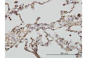 Immunohistochemistry (Paraffin-embedded Sections) (IHC (p)) image for anti-Echinoderm Microtubule Associated Protein Like 2 (EML2) (AA 1-428) antibody (ABIN2838582)