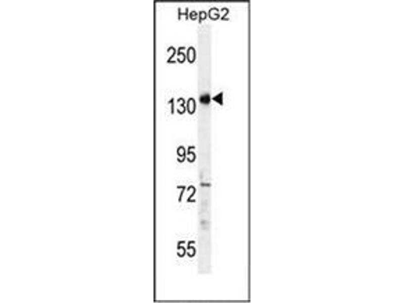 Western Blotting (WB) image for anti-Partner and Localizer of BRCA2 (PALB2) (AA 553-582), (Middle Region) antibody (ABIN953981)