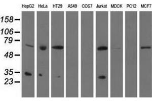 Image no. 2 for anti-Pyrroline-5-Carboxylate Reductase Family, Member 2 (PYCR2) antibody (ABIN2730203)