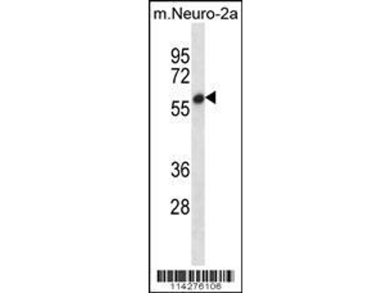 Western Blotting (WB) image for anti-SET and MYND Domain Containing 2 (SMYD2) (AA 120-152), (N-Term) antibody (ABIN387897)