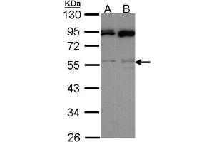 Western Blotting (WB) image for anti-MAPK9 antibody (Mitogen-Activated Protein Kinase 9) (Center) (ABIN441665)