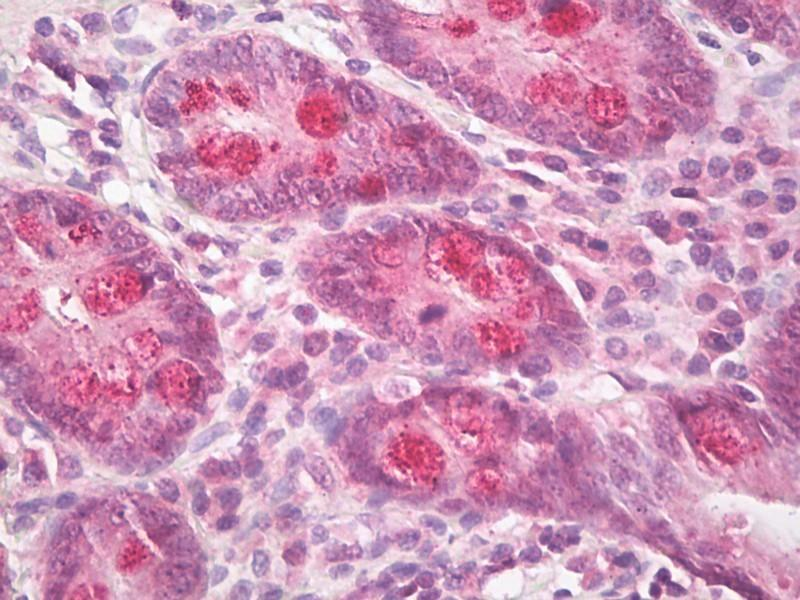 Immunohistochemistry (IHC) image for anti-Intestinal Cell (MAK-Like) Kinase (ICK) (AA 448-497) antibody (ABIN1492550)