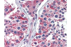 Immunohistochemistry (Paraffin-embedded Sections) (IHC (p)) image for anti-Apoptosis-Inducing Factor, Mitochondrion-Associated, 1 (AIFM1) (N-Term) antibody (ABIN615300)