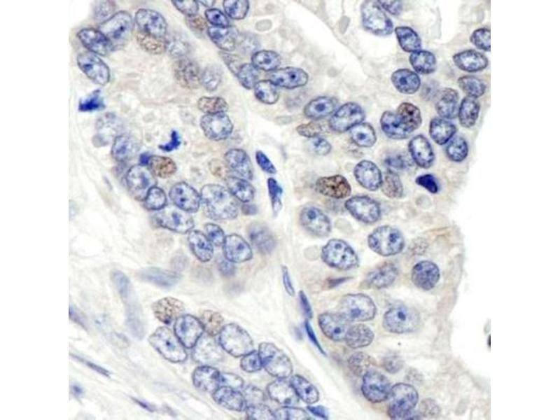 Immunohistochemistry (Paraffin-embedded Sections) (IHC (p)) image for anti-G Protein Pathway Suppressor 1 (GPS1) (C-Term) antibody (ABIN151826)