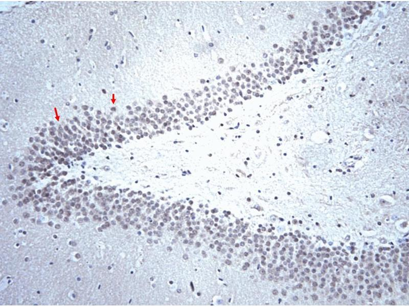 Immunohistochemistry (Paraffin-embedded Sections) (IHC (p)) image for anti-Serotonin Receptor 5-HT 2BR (AA 1-58) antibody (ABIN967504)