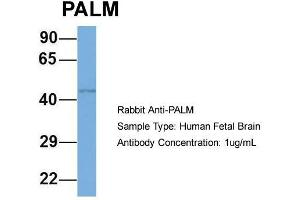 Image no. 3 for anti-Paralemmin (PALM) (N-Term) antibody (ABIN2786611)