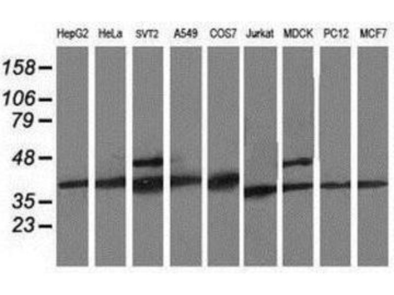 Western Blotting (WB) image for anti-Cyclin-Dependent Kinase 2 (CDK2) antibody (ABIN4297029)