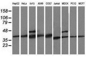 Western Blotting (WB) image for anti-CDK2 antibody (Cyclin-Dependent Kinase 2) (ABIN4297029)