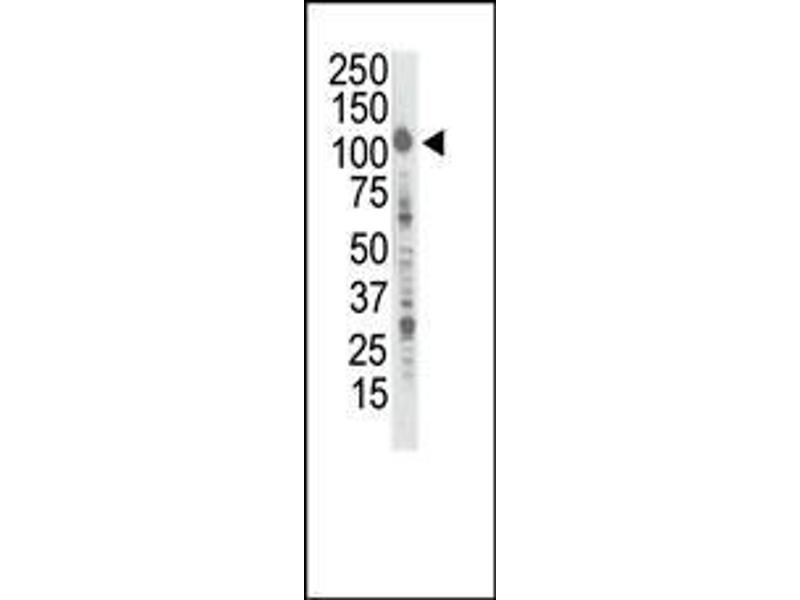 Western Blotting (WB) image for anti-INSRR antibody (Insulin Receptor-Related Receptor) (AA 1256-1287) (ABIN392005)