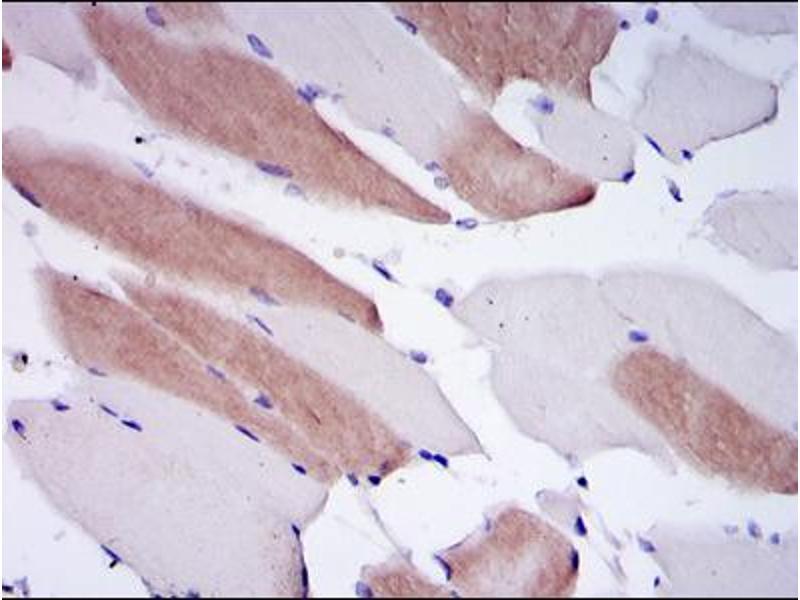 Immunohistochemistry (IHC) image for anti-Lamin A/C (LMNA) antibody (ABIN1108015)
