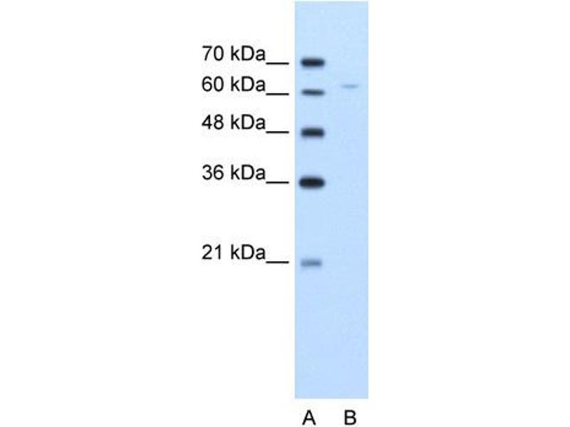 Western Blotting (WB) image for anti-Dihydrolipoyl Transacetylase (DLAT) (N-Term) antibody (ABIN310264)