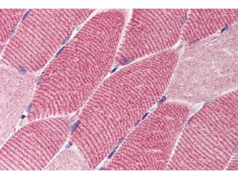 Immunohistochemistry (IHC) image for anti-TSC1 antibody (Tuberous Sclerosis 1) (Middle Region) (ABIN214539)
