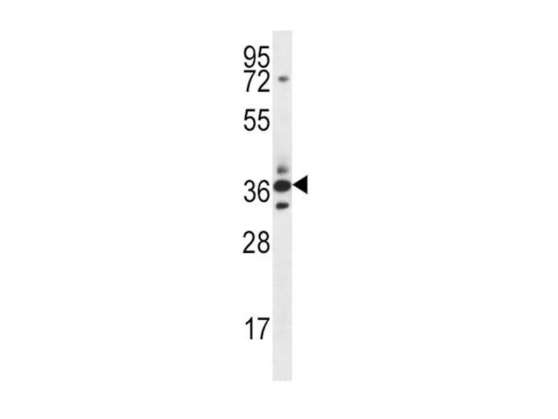 Western Blotting (WB) image for anti-SFRP5 antibody (Secreted Frizzled-Related Protein 5) (Center) (ABIN2502527)