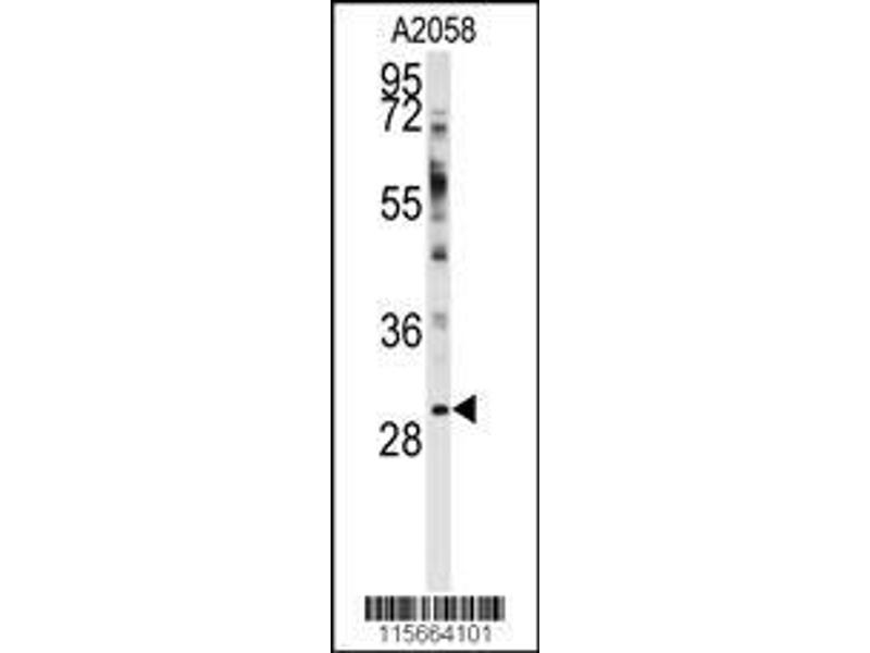 Western Blotting (WB) image for anti-WW Domain Binding Protein 2 (WBP2) (AA 19-47), (N-Term) antibody (ABIN392213)