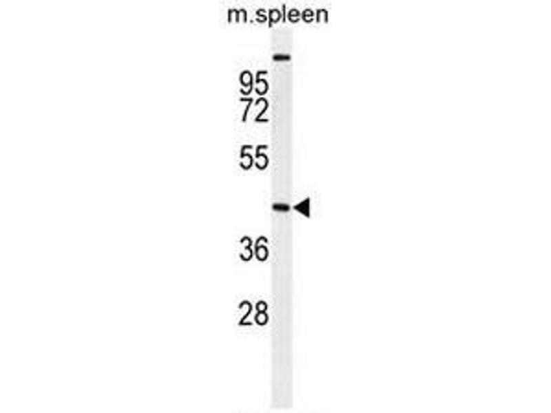 Western Blotting (WB) image for anti-serine/threonine Kinase 32A (STK32A) (AA 1-30), (N-Term) antibody (ABIN954981)