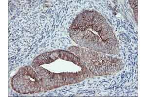Image no. 1 for anti-Carboxypeptidase A2 (Pancreatic) (CPA2) antibody (ABIN1497596)