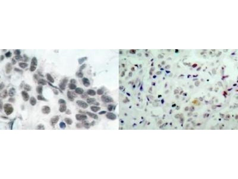 Immunohistochemistry (IHC) image for anti-Retinoblastoma 1 抗体 (RB1) (ABIN4349470)