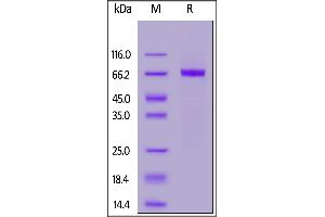 Image no. 2 for Receptor tyrosine-protein kinase erbB-2 (ErbB2/Her2) (AA 23-510) (Active) protein (His tag) (ABIN7013682)