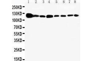 Image no. 2 for anti-Vinculin (VCL) (AA 173-188), (N-Term) antibody (ABIN3044168)