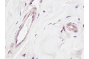 Image no. 1 for anti-Vascular Endothelial Growth Factor A (VEGFA) antibody (ABIN465403)