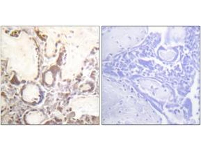 Immunohistochemistry (IHC) image for anti-GTPase Activating Protein (GAP) (AA 353-402), (pSer387) antibody (ABIN1531650)