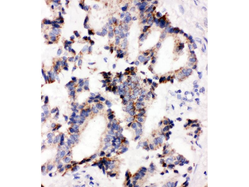 Immunohistochemistry (IHC) image for anti-Interleukin-1 Receptor-Associated Kinase 2 (IRAK2) (AA 600-616), (C-Term) antibody (ABIN3044473)