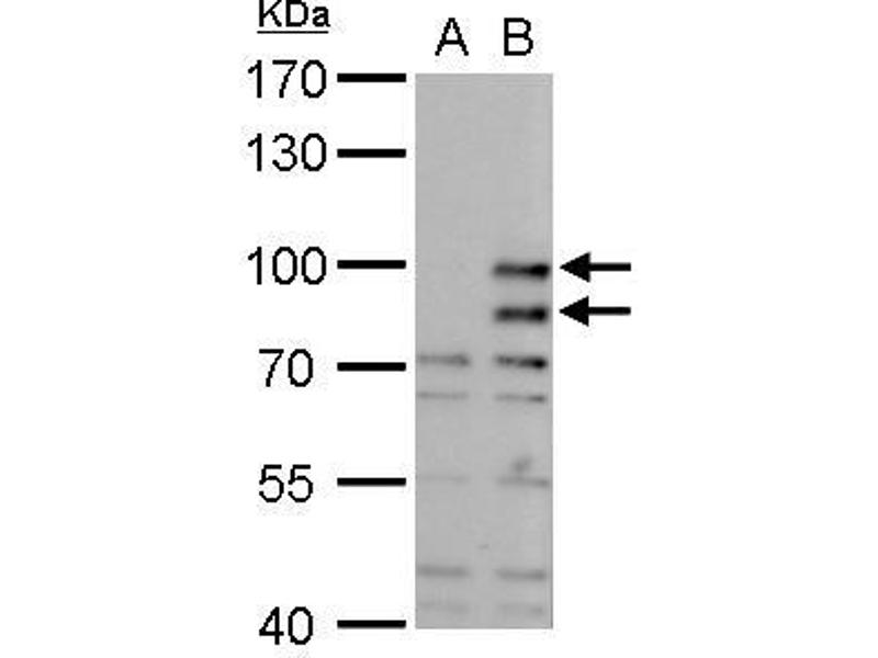 Western Blotting (WB) image for anti-Mdm2, p53 E3 Ubiquitin Protein Ligase Homolog (Mouse) (MDM2) (Center) antibody (ABIN2854782)