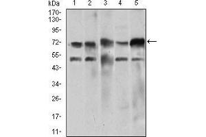 Western Blotting (WB) image for anti-Wolf-Hirschhorn Syndrome Candidate 2 (WHSC2) (AA 280-511) antibody (ABIN1724801)