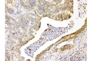 Image no. 5 for anti-Basigin (Ok Blood Group) (BSG) (AA 138-323) antibody (ABIN5518743)