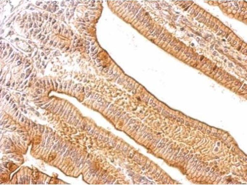 Immunohistochemistry (IHC) image for anti-CD40 Ligand (CD40LG) (Center) antibody (ABIN2854749)