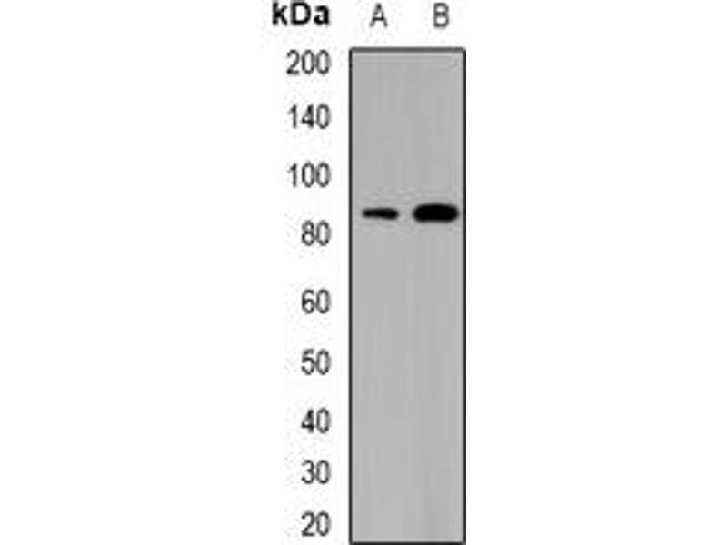 Western Blotting (WB) image for anti-SATB Homeobox 1 (SATB1) antibody (ABIN2967007)