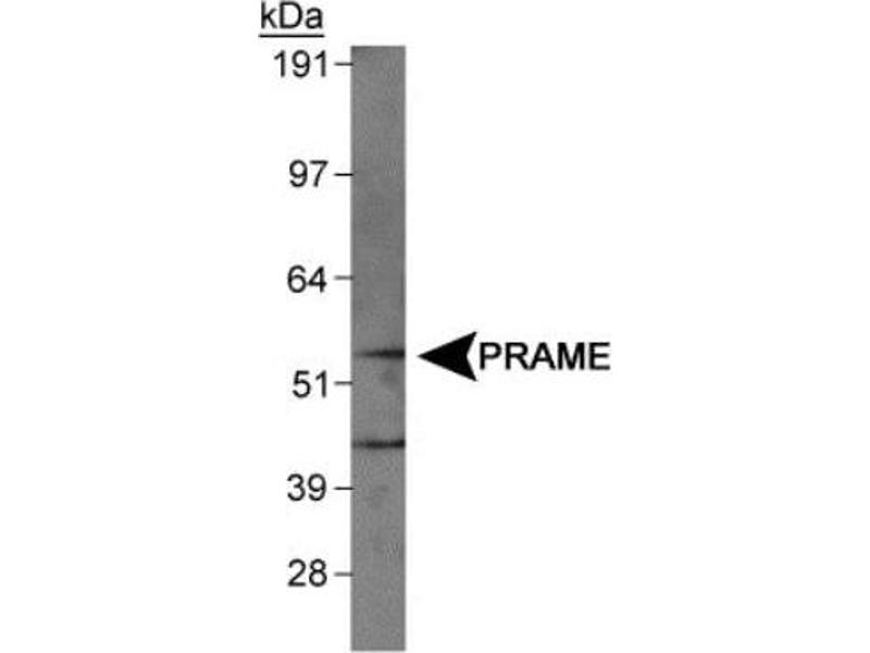 Western Blotting (WB) image for anti-Preferentially Expressed Antigen in Melanoma (PRAME) (AA 1-100), (N-Term) antibody (ABIN315884)