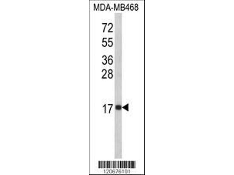 Western Blotting (WB) image for anti-Interleukin 8 antibody (IL8) (AA 72-99) (ABIN652552)