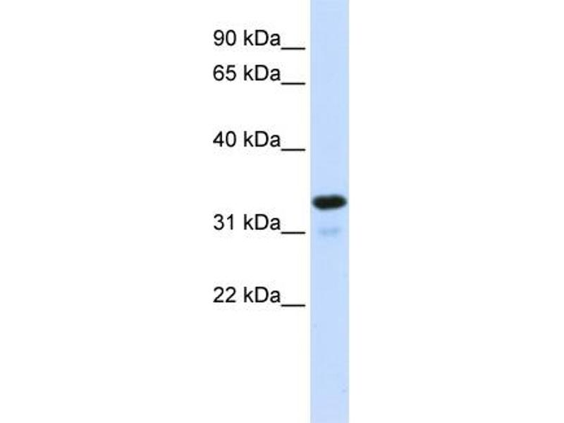 Western Blotting (WB) image for anti-NFKBIA antibody (Nuclear Factor of kappa Light Polypeptide Gene Enhancer in B-Cells Inhibitor, alpha) (Middle Region) (ABIN2792229)