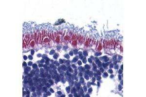 Immunohistochemistry (Formalin-fixed Paraffin-embedded Sections) (IHC (fp)) image for anti-AIFM1 antibody (Apoptosis-Inducing Factor, Mitochondrion-Associated, 1) (ABIN2166446)
