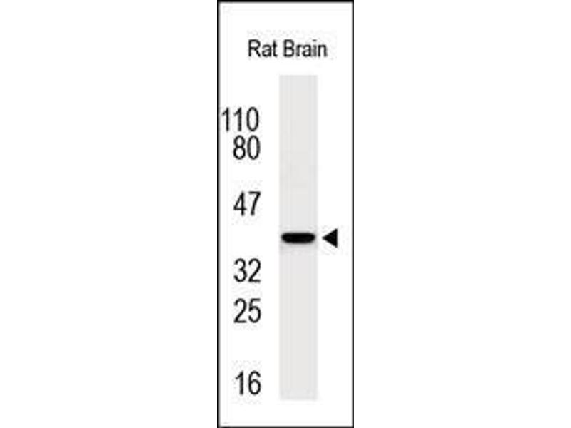 Western Blotting (WB) image for anti-Chemokine (C-X-C Motif) Receptor 1 (CXCR1) (N-Term) antibody (ABIN1585647)