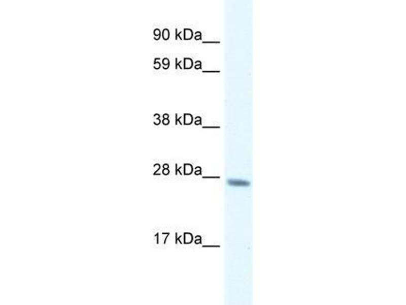 Western Blotting (WB) image for anti-General Transcription Factor IIF, Polypeptide 2, 30kDa (GTF2F2) (C-Term) antibody (ABIN1107467)
