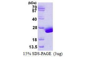 Image no. 1 for Ubiquitin-Conjugating Enzyme E2H (UBE2H) protein (His tag) (ABIN1098258)