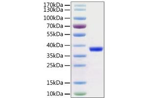 Image no. 1 for SARS-CoV-2 3C-Like Proteinase (NSP5) (3CL-PRO, M-Pro) (AA 1-306) protein (His-Avi Tag) (ABIN6952741)