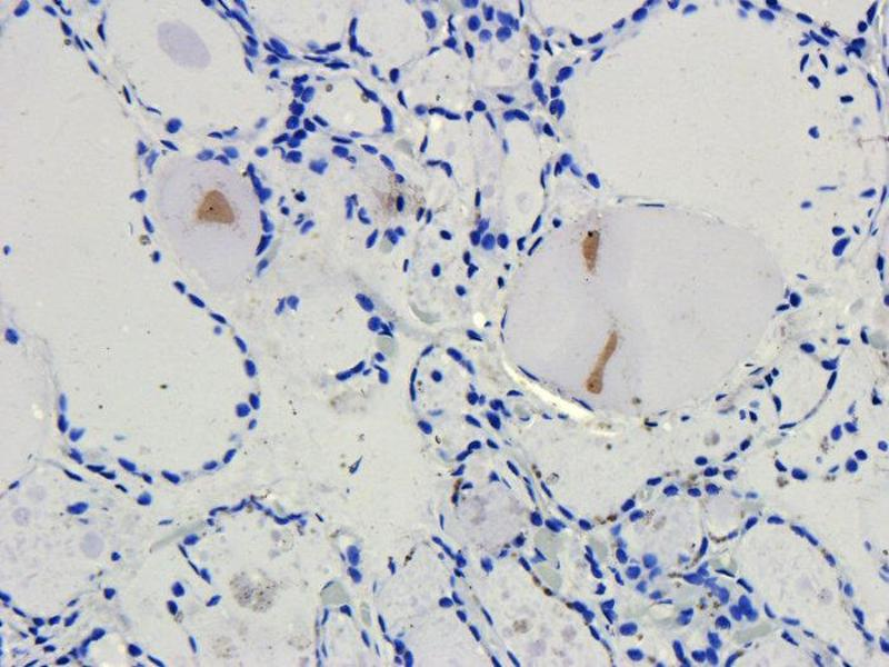 Immunohistochemistry (Paraffin-embedded Sections) (IHC (p)) image for anti-CD4 Molecule (CD4) antibody (ABIN2506709)
