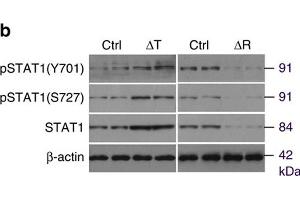 Image no. 4 for anti-Signal Transducer and Activator of Transcription 1, 91kDa (STAT1) (pSer727) antibody (ABIN3023640)