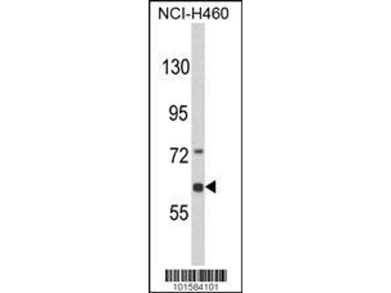 Western Blotting (WB) image for anti-EPH Receptor A3 Antikörper (EPHA3) (AA 115-144) (ABIN391887)